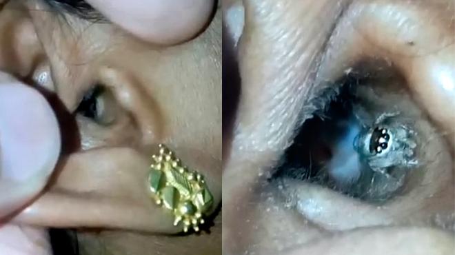 elle souffre de maux de t te le m decin trouve une grosse araign e dans son oreille vid o. Black Bedroom Furniture Sets. Home Design Ideas