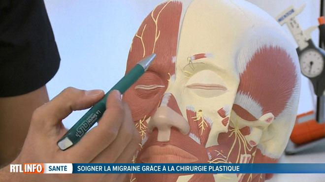 Voici la nouvelle technique qui permet de soigner la migraine: une opération de chirurgie plastique