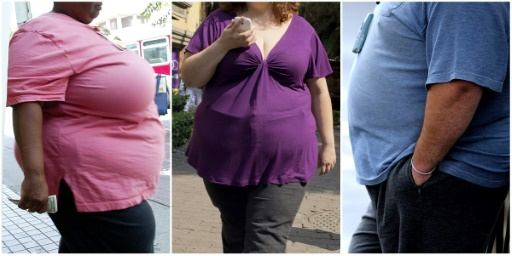 La chirurgie de l'obésité a explosé, pas toujours pour le meilleur