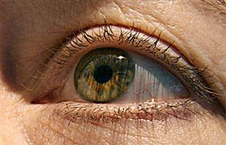 DMLA- Ils ont retrouvé la vue grâce à des cellules souches