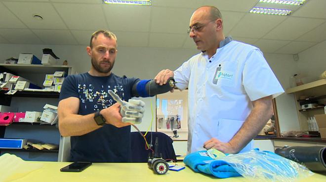 Thierry découvre sa nouvelle main bionique: