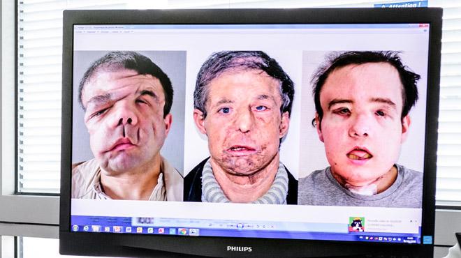L'homme aux trois visages se dévoile après une nouvelle greffe: