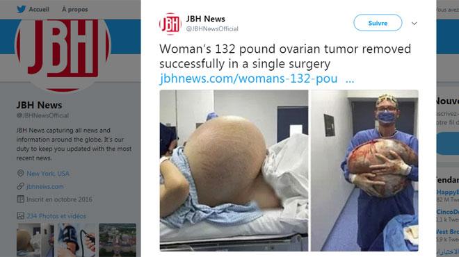 Des médecins enlèvent une tumeur de 60 kilos du corps d'une femme aux États-Unis