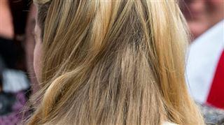 Attention aux courges amères, elles vous feraient perdre vos cheveux 4