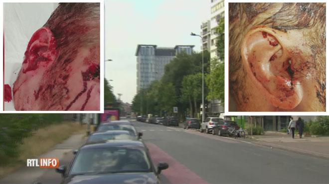 Bruxelles: un policier violemment agressé au pavé le soir de France-Belgique