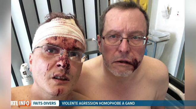 Violente agression d'un couple homosexuel à Gand: deux suspects vont passer la nuit en prison