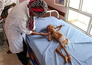 Guerre au Yémen- plus de cinq millions d'enfants menacés de famine