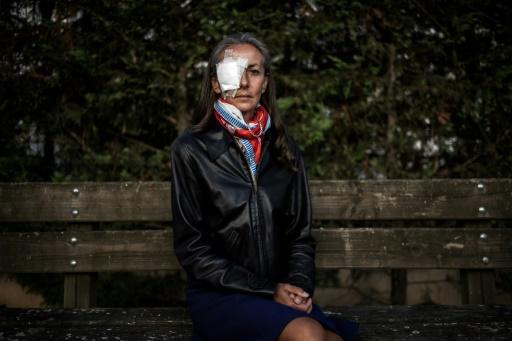 Spectatrice blessée à la Ryder Cup: