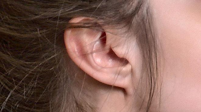 Attentats de Bruxelles: des dizaines de victimes subissent de graves problèmes auditifs