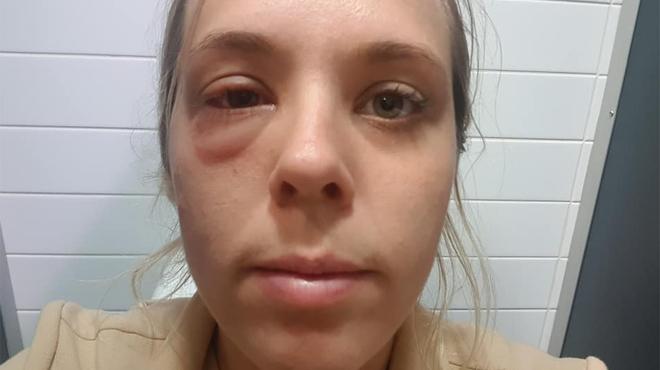 Elle se retrouve défigurée pendant un vol car quelqu'un a mangé des noix dans l'avion: