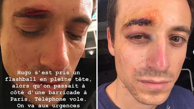 Hugo Clément blessé lors des manifestations à Paris — Gilets jaunes