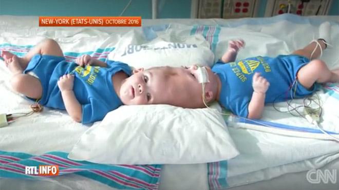 Siamois reliés par la tête, Jadon et Anias ont quitté l'hôpital après une opération très risquée