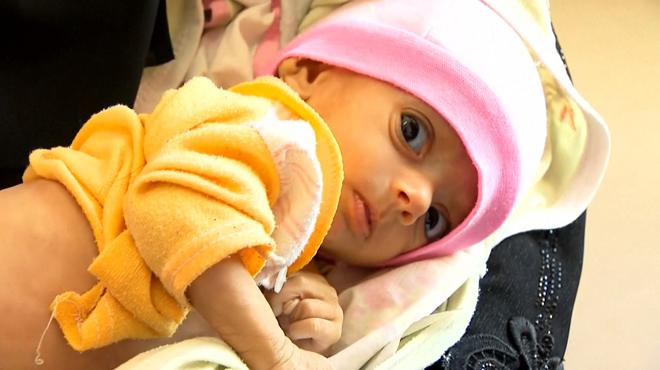 Au Yémen, les enfants meurent dans l'indifférence la plus totale: ce reportage bouleversant montre la dure réalité sur place