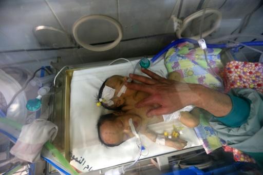 Une équipe médicale saoudienne prête à traiter des bébés siamois yéménites