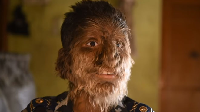 Lalit, 13 ans, souffre du syndrome du loup-garou: