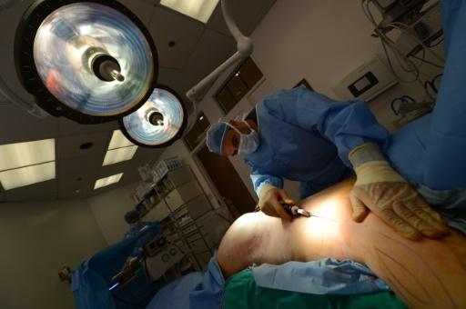 Liposuccions, augmentations mammaires et Botox en hausse aux Etats-Unis