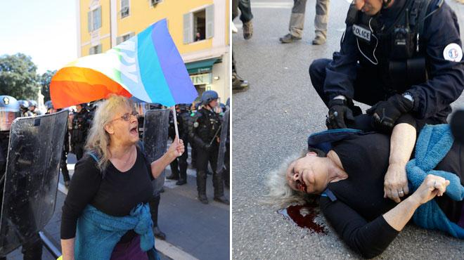 Gilets jaunes: polémique en France après la blessure d'une manifestante âgée samedi à Nice