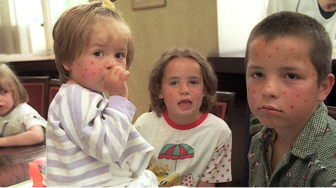 Rougeole: les Etats-Unis frôlent les 700 cas et annoncent la pire épidémie depuis 2000
