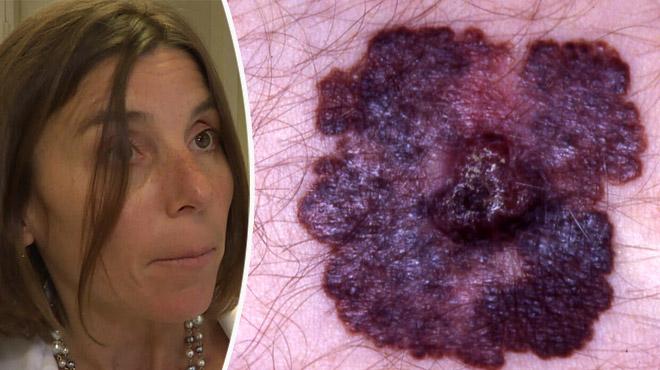 Risques de cancer de la peau: voici des comportements à adopter face au soleil
