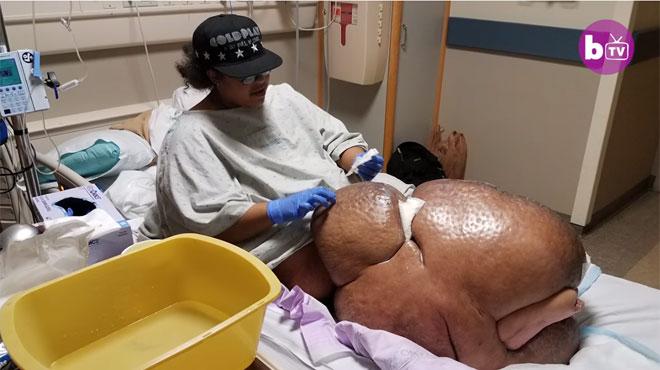 Clouée au lit pendant 4 ans à cause de sa jambe de 70 kg, Jamila REVIT grâce à une opération radicale (vidéo)