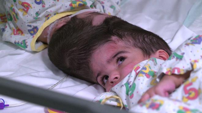 Après trois importantes opérations chirurgicales, des jumelles siamoises par la tête viennent d'être séparées