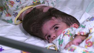 Après trois importantes opérations chirurgicales, des jumelles siamoises par la tête viennent d'être séparées (vidéo) 4