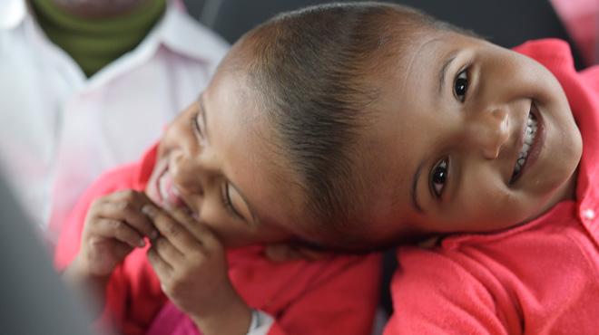Prouesse médicale au Bangladesh: des siamoises reliées par la tête ont été séparées