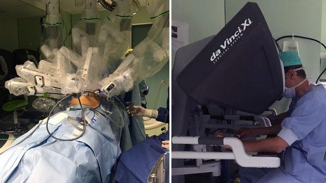 Un robot pour opérer un patient atteint du syndrome de Dunbar: une prouesse médicale a été faite à Bruxelles