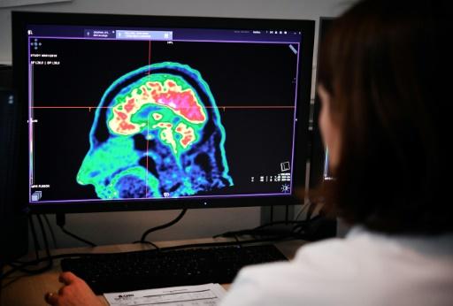 Intelligence artificielle et diagnostic médical: efficacité encore incertaine, selon une étude