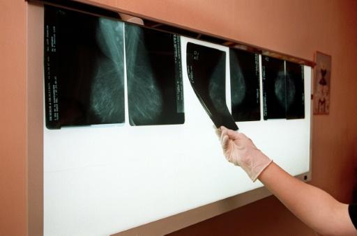 Cancer du sein: certains polluants favoriseraient les métastases