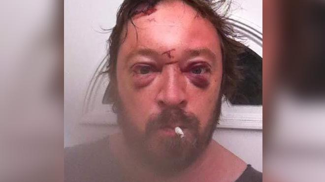 Alcoolique, Gene Davies découvre un selfie de son visage tuméfié: ce cliché est un déclic pour le Gallois
