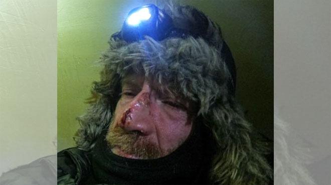 Visage en sang et à bout de forces, Mike Horn peine à poursuivre sa traversée de l'Arctique (photos)