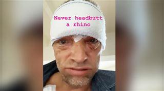 Vincent Cassel méconnaissable après son accident de scooter- il dévoile son visage tuméfié