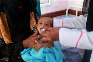Yémen- les enfants rachitiques, symboles de six ans de guerre