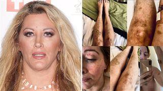 Loana, défigurée, partage des images de son corps tuméfié- Vous voulez vraiment la vérité?