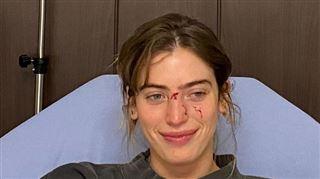 Moins d'une heure après avoir été mordue par un chien au visage, Clara, la fille d'Ewan McGregor, foule le tapis rouge 4