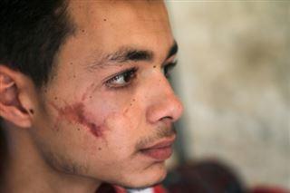 Malades, handicapés, des milliers de Syriens suspendus à l'aide de l'ONU menacée
